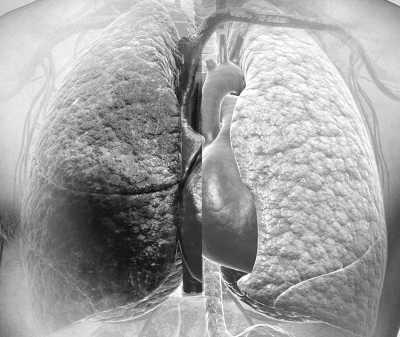图片左边为吸烟者的肺部,对比右边不吸烟者的肺,损伤更为明显-吸图片